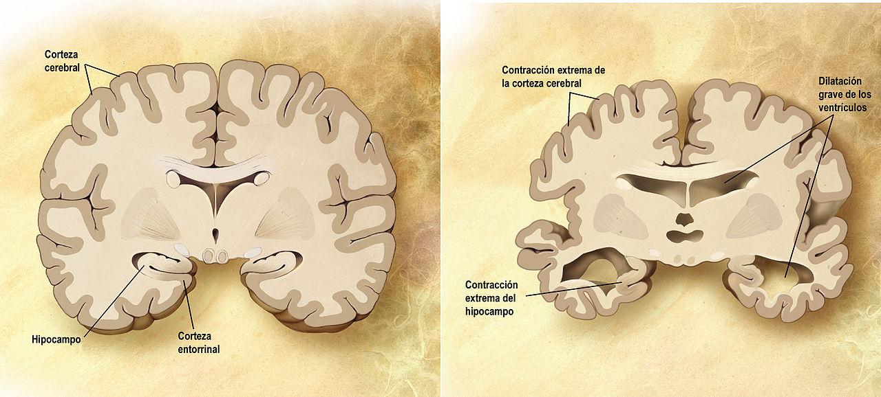 definición clínica alzheimer